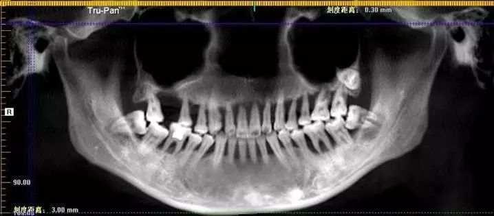 Ảnh chụp X-quang của cô cho thấy chân răng đã quá lỏng lẻo. (Ảnh: Sohu)