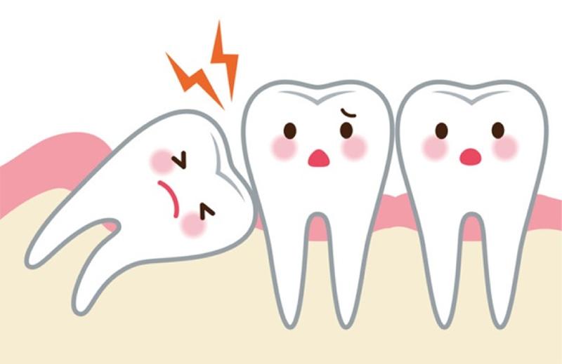 Mọc răng khôn có thể gây ra nhiều đau đớn.