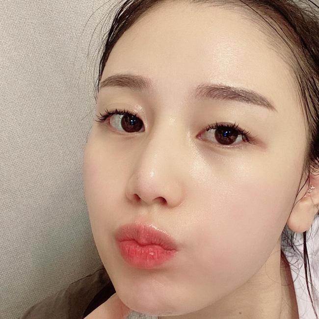 cham-soc-da-mua-dong 1