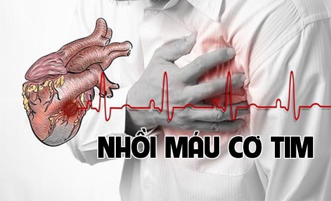 Những dấu hiệu nhận biết bệnh nhồi máu cơ tim, ai cũng nên thận trọng