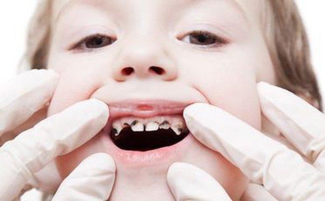 Sâu răng làm ảnh hưởng đến sự mọc răng vĩnh viễn