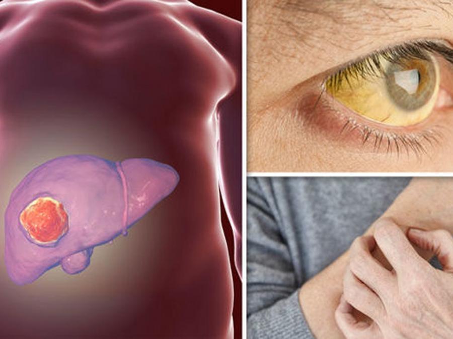 Vàng da mệt mỏi chán ăn buồn nôn chứng tỏ gan của bạn đang suy yếu nghiêm trọng