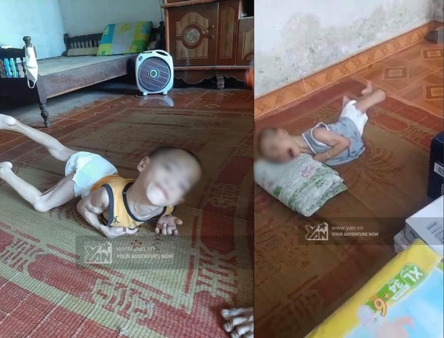 Người con bị bại bại liệt của anh Tiến (Ảnh: Yan)