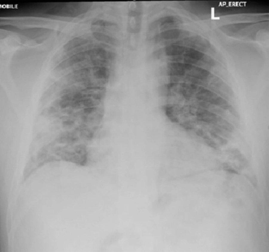 Hình ảnh phổi tổn thương do Covid-19