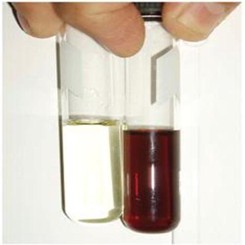 Bạn có biết màu sắc nước tiểu cũng là một cách phổ biến dùng để chẩn đoán bệnh và tình trạng cơ thể.