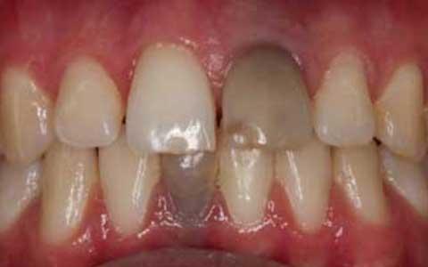 Răng chuyển sang đen có thể là dấu hiệu của bệnh ung thư miệng.