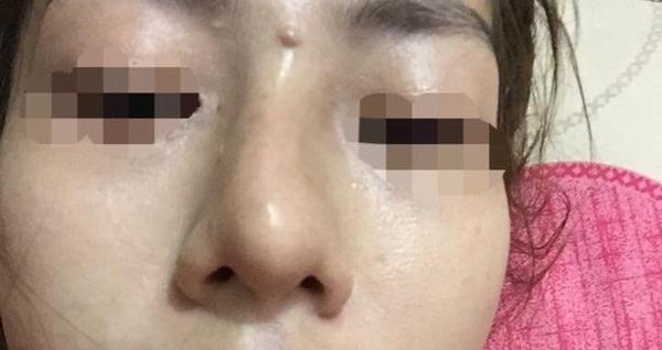 Khi nhìn trong gương thấy mũi khác bình thường thì cũng nên cẩn trọng.
