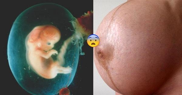 Đa ối ảnh hưởng tới sức khỏe của thai nhi