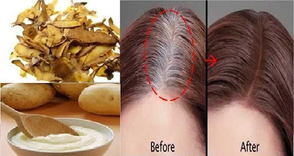 Tư vấn cách trị dứt điểm hiện tượng bạc tóc sớm cho chị em phụ nữ