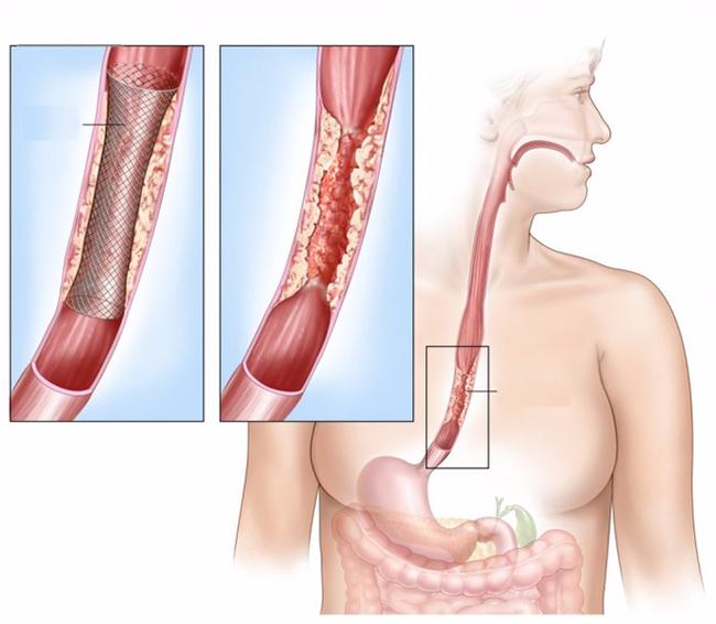 Uống nước kiểu này rất dễ dẫn tới ung thư vòm họng, thực quản