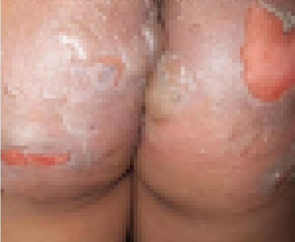 Vết bỏng nặng trên mông cháu bé