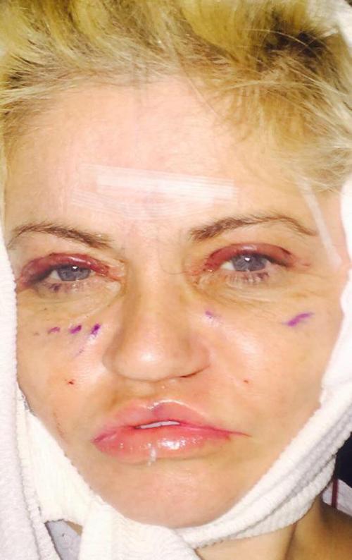 '. Ám ảnh kinh hoàng với gương mặt sau phẫu thuật thẩm mỹ của nữ diễn viên Anh .'