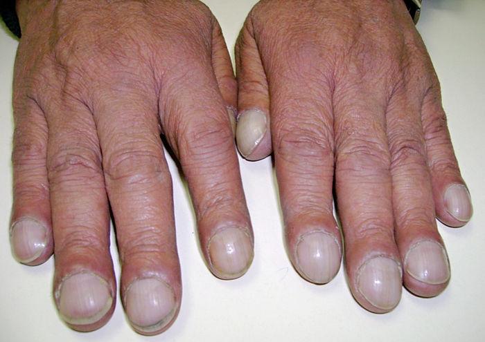 Clip: 6 dấu hiệu nhìn móng tay đoán ngay bệnh
