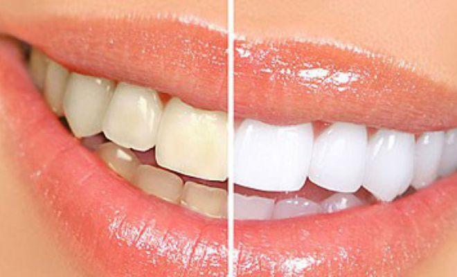 Cao răng bật ra từng mảng dù dày tới đâu ngay lập tức cho răng sáng bóng chỉ với 1 ngàn