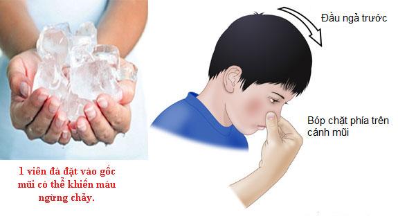 Ứng phó kịp thời khi bị nghẹt mũi chảy máu cam