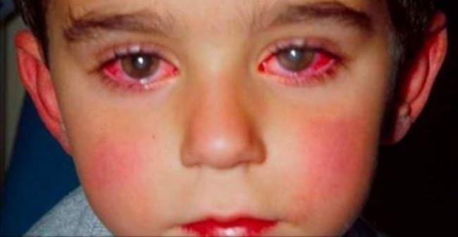 Cha mẹ không thể nào ngờ được đây là lý do khiến trẻ mất đi 70% thị lực