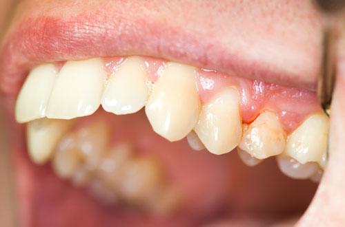 '. Chảy máu chân răng biểu hiện của bệnh cực kỳ nguy hiểm thậm chí tử vong nếu không đi khám ngay .'