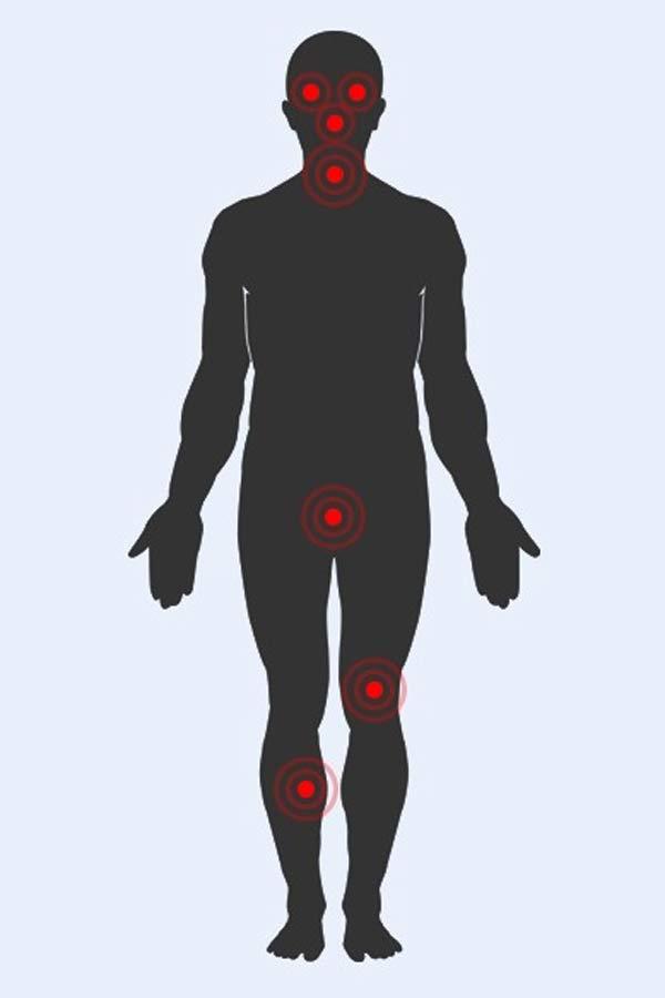 Các điểm yếu trên cơ thể (chấm đỏ)