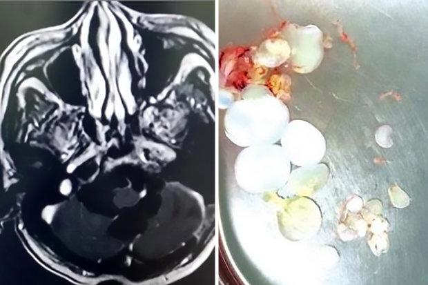 30 trứng sán dây làm tổ trong đầu bệnh nhân ở Trung Quốc.