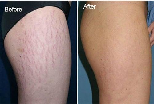 Rạn da đến đâu cũng sẽ mờ dần rồi mất hẳn với 7 cách này