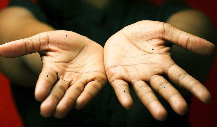- ban tay co not ruoi phunutoday 1608 phunutoday - Nốt ruồi nằm trên các đốt ngón tay: VINH HOA PHÚ QUÝ hay BẦN HÀN CƠ CỰC?