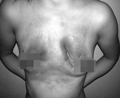 Hoại tử vì tiêm silicon nâng ngực không đúng cách