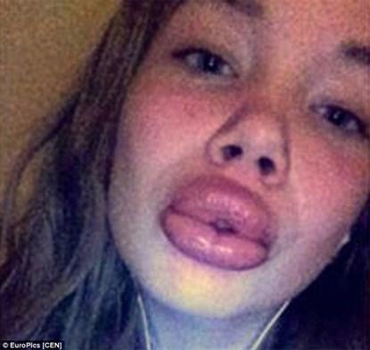 Hậu quả của phấu thuật thẩm mỹ của 2 cô gái mồm sưng vều vì bơm môi bằng chai nước