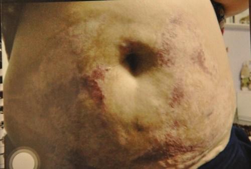 Kinh hoàng những biến chứng do phẫu thuật thẩm mỹ không đúng cách 3
