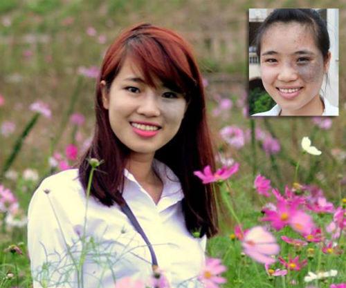 Ngạc nhiên trước sự lột xác của 10 thiếu nữ Việt sau khi dao kéo 4