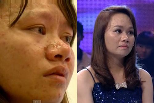 Ngạc nhiên trước sự lột xác của 10 thiếu nữ Việt sau khi dao kéo 5
