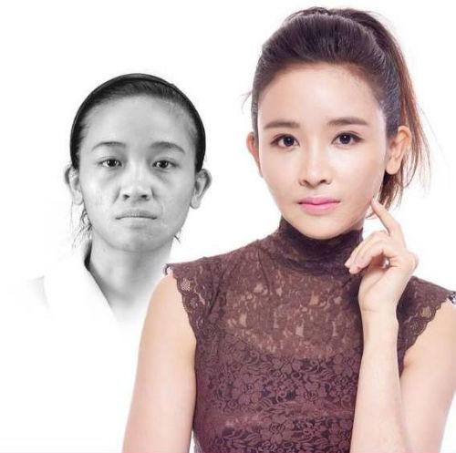 Ngạc nhiên trước sự lột xác của 10 thiếu nữ Việt sau khi dao kéo 7