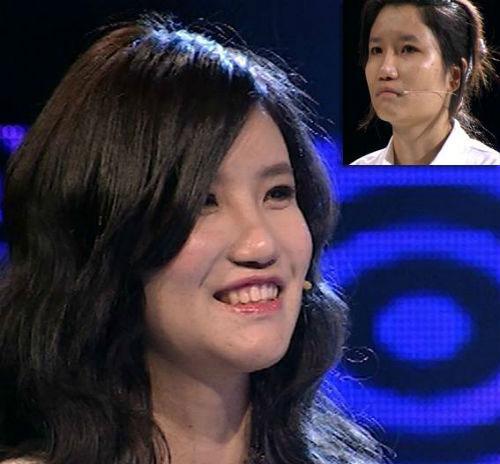 Ngạc nhiên trước sự lột xác của 10 thiếu nữ Việt sau khi dao kéo 8