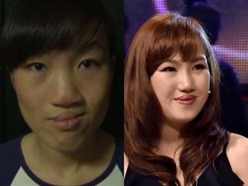 Ngạc nhiên trước sự lột xác của 10 thiếu nữ Việt sau khi dao kéo