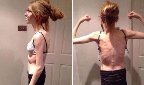 Giảm cân quá đà cô gái 15 tuổi chỉ còn da bọc xương