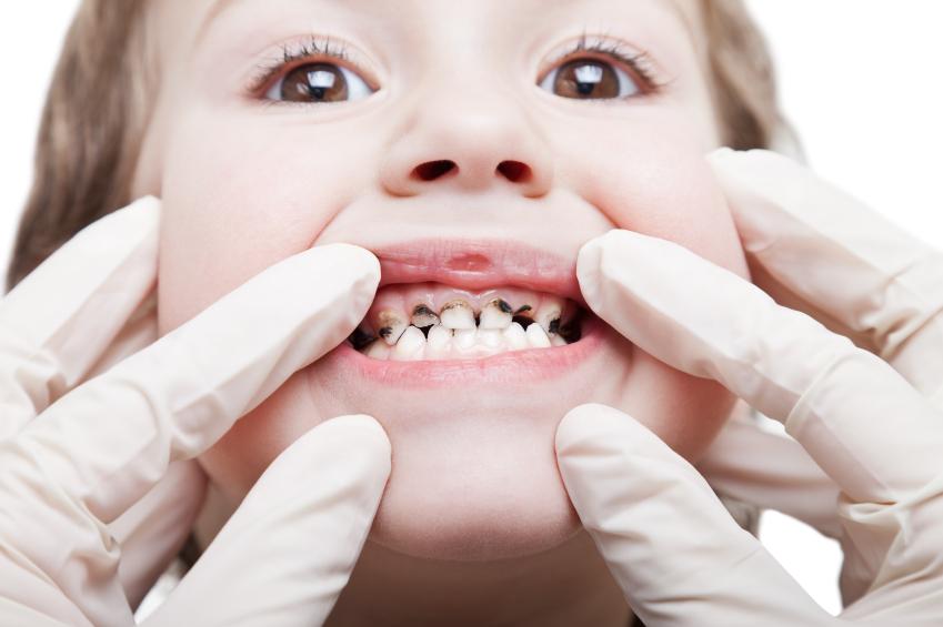 Dấu hiệu nhận biết và cách phòng ngừa sâu răng ở trẻ nhỏ