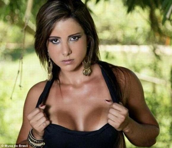 Người đẹp Brazil tử vong vì sử dụng chất kích thích cơ bắp