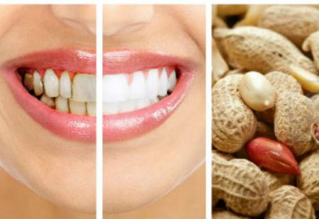 Lạc sống giúp bạn đánh bay cao răng cho nụ cười luôn tỏa sáng