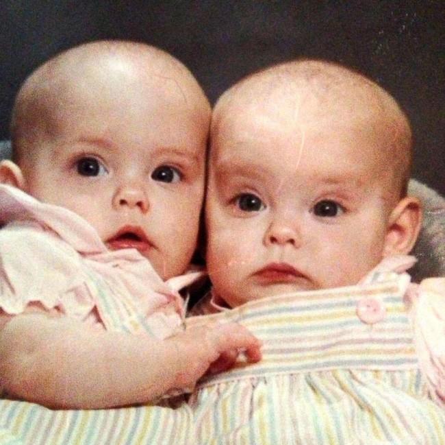 Hình ảnh hai chị em sinh đôi Jalynne Crawford và Janelle Leopoldo giống nhau đến mức khó phân biệt.