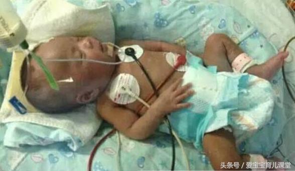 Cậu bé 10 ngày tuổi nhập viện trong tình trạng hôn mê vì nhiễm trùng máu